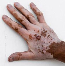 Bulimba Dermatology - Dr Scott Webber |